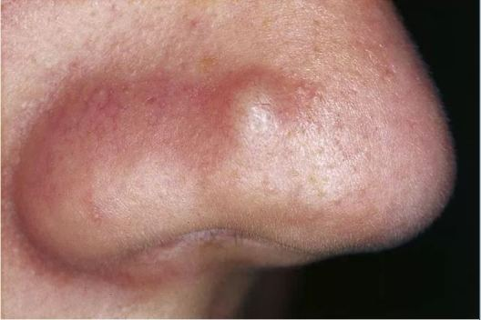 Acne pictures - Nodular acne