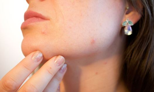 How to stop acne - do not squeeze
