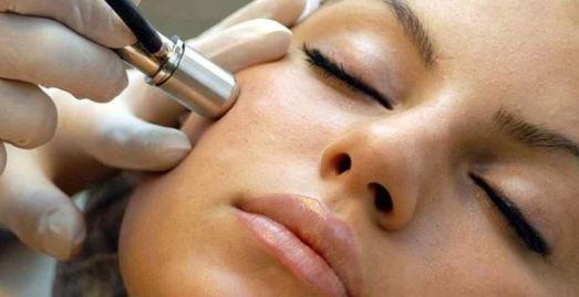 Acne Surgery - Laser